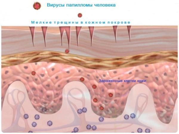 проникновение впч в здоровые клетки