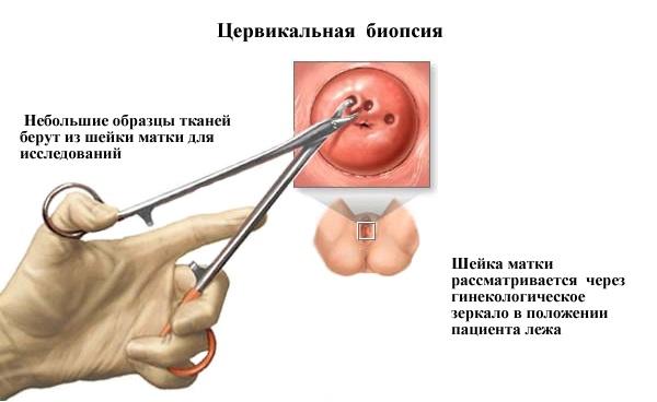 церквиальная биопсия