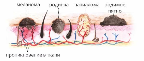 проникновение в кожу папиллома