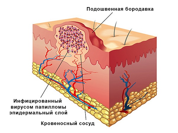 структура шипицы
