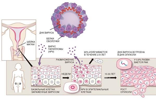 Вирус папилломы человека (ВПЧ) высокого онкогенного риска
