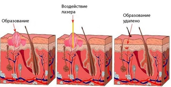 воздействие лазера на папиллому