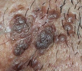 бовеноидный папулез у мужчин