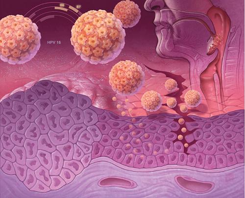 проникновение вируса папилломы человека