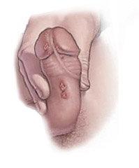 папилломы у мужчин на половых органах