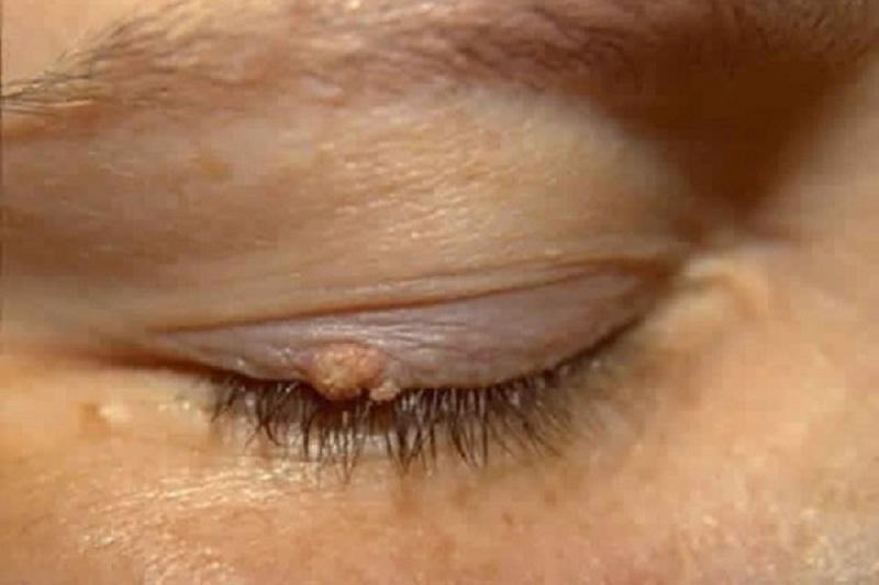 Папилломы на веке: как удалить с глаза, фото, лечение