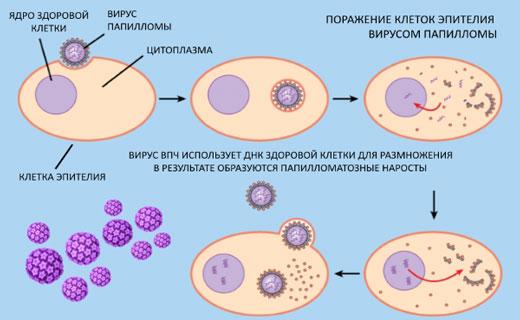фото: заражение вирусом папилломы человека