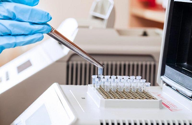 Анализ ПЦР на ВПЧ — что это такое и как его сдавать?