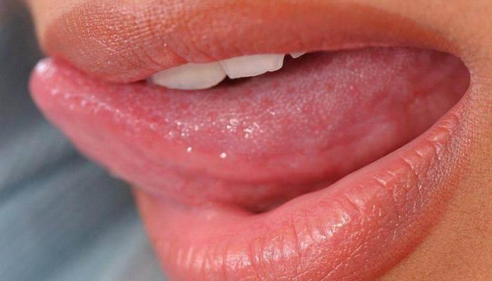 Папиллома на языке симптомы лечение прогноз