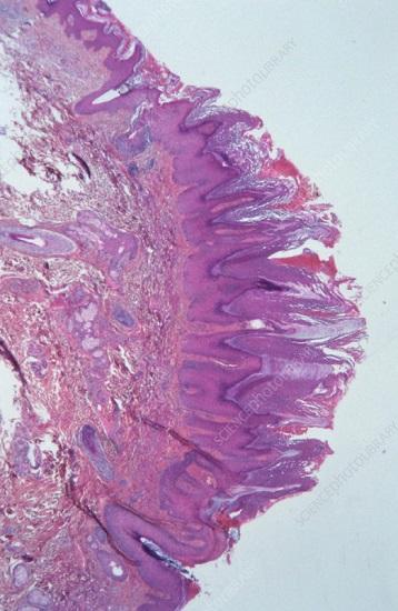 Гиперкератоз папилломы под микроскопом гистология