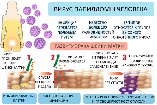развитие рака шейки матки при впч