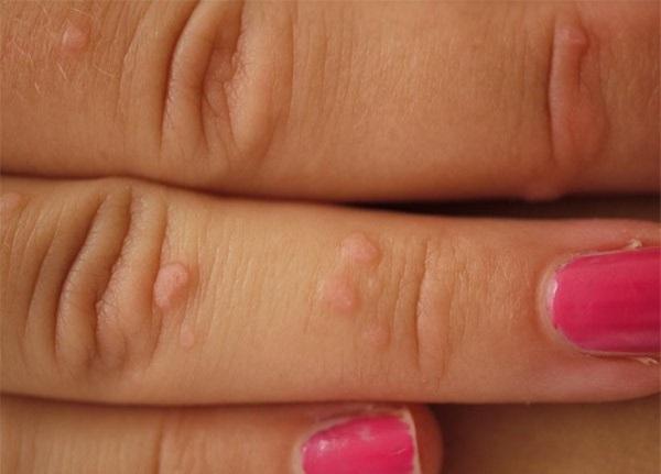 плоские папилломы на пальцах рук